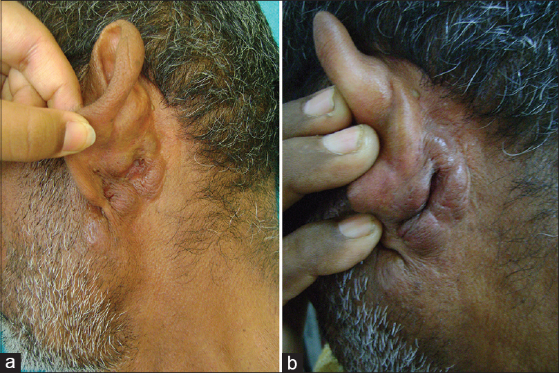 Figure 1: (a) Clinical picture showing multiple nodules over the left retroauricular area. (b) Close up view showing nodules with multiple sebaceous cysts 1-2 cm above the nodules