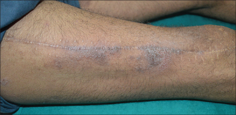 Figure 1: Autonomic denervation dermatitis over lateral aspect of right thigh following fractured femur surgery