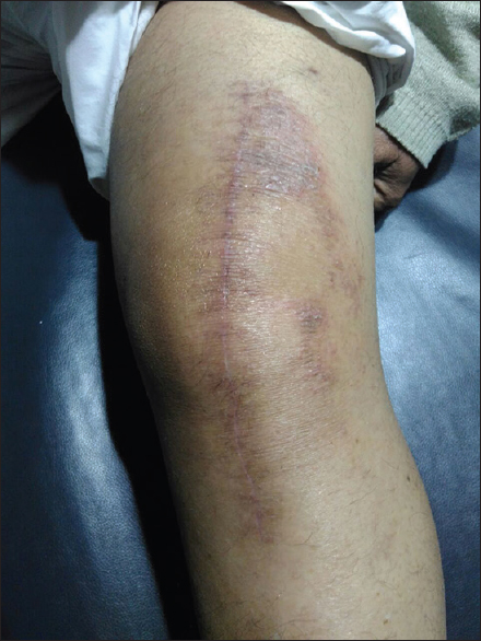 Figure 3: Left knee region showing dry sub-acute type of eczematous reaction along suture marks and adjacent skin after total knee replacement