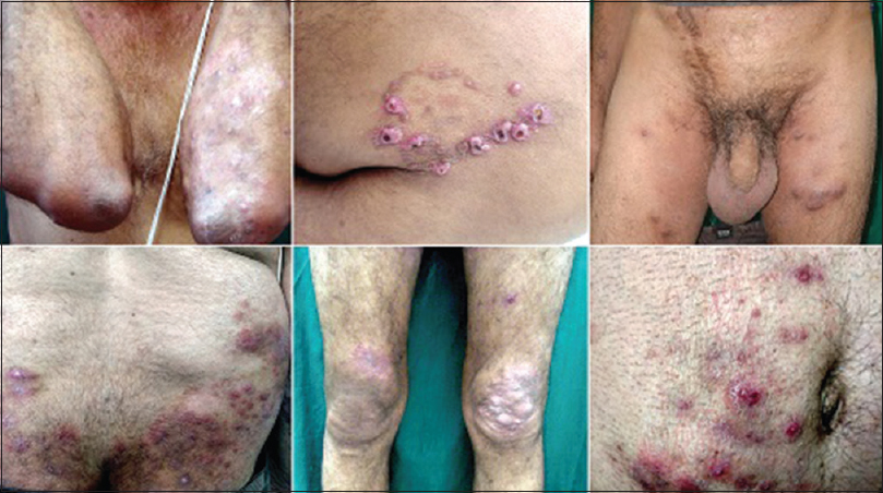 Figure 6: Nodular lesions of deep dermatophytosis in a renal transplant patient