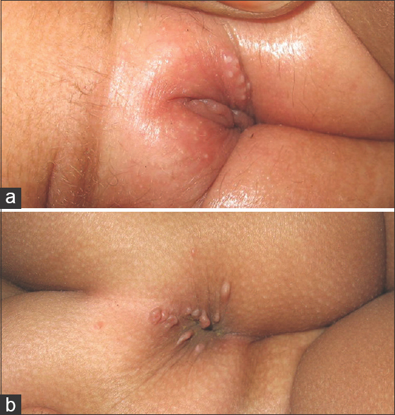 Figure 12: (a) Pearly papules on vulva seen in molluscum contagiosum, (b) similar lesions on the perianal region