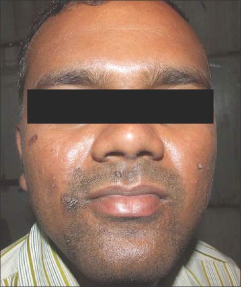 Figure 2: Lesion on the face at the beginning of treatment
