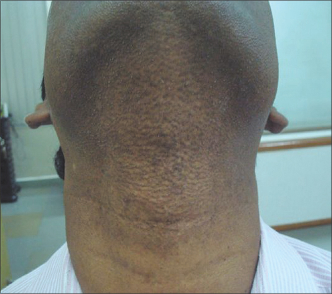 Figure 6: Clearance of lesion on neck after 6 months of treatment