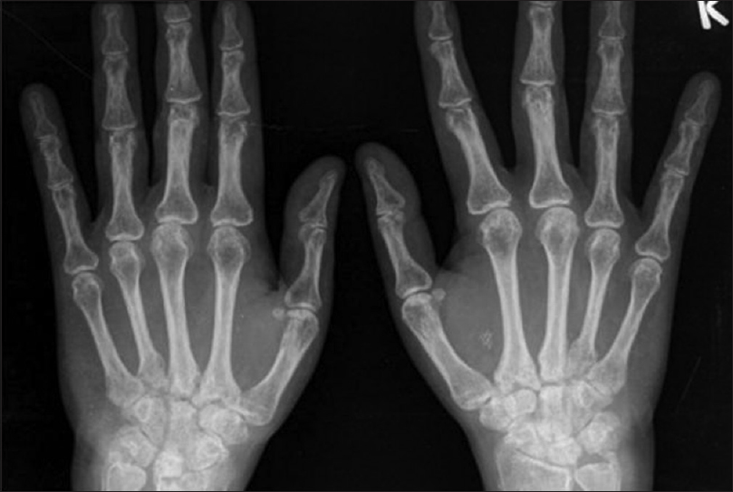Figure 2: X-ray hands anteroposterior view showing juxtaarticular osteopenia, symmetrical joint space narrowing, and erosions