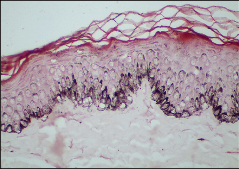 Figure 12: Fontana Masson stain confirming basal hypermelanosis and melanin incontinence in facial frictional melanosis
