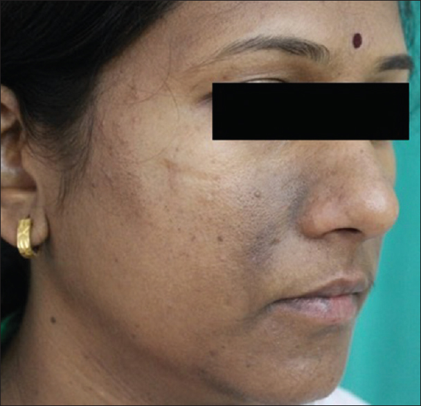 Figure 4: Paranasal type of facial frictional melanosis: Pigmentation on the lateral sides of the nasal bridge and nasolabial folds