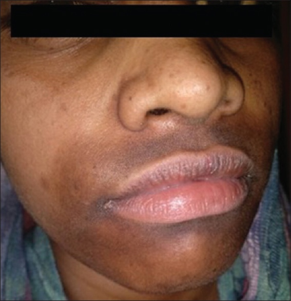 Figure 5: Perioral type of facial frictional melanosis: Pigmentation around the mouth