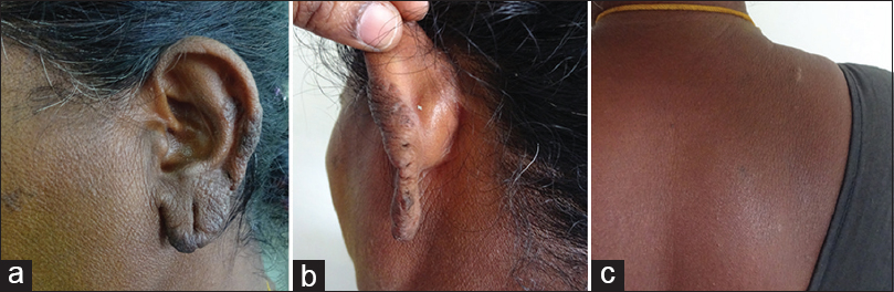Figure 4: (a-c) Resolving lesions after 1 month of antituberculosis drugs