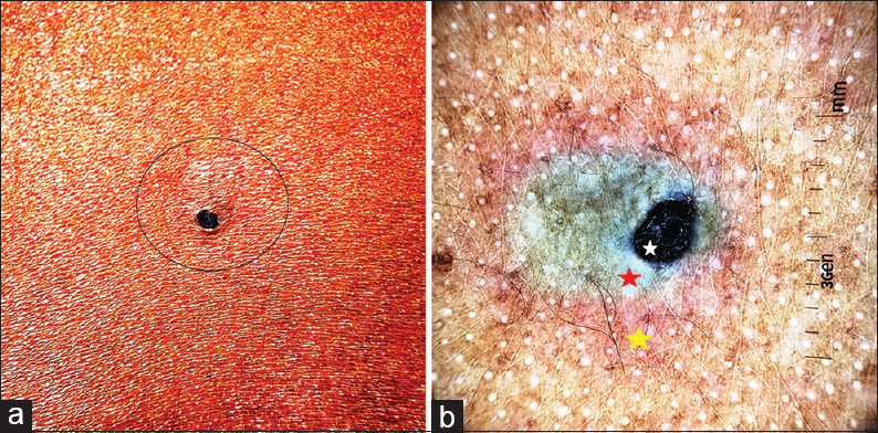 Figure 1: A solitary 3 mm × 3 mm large open comedone-like lesion on the back (a). Noncontact dermoscopy using DermLite™ DL3 under polarized mode showing central bluish-black homogenous area (b, white star) with a whitish translucent halo (b, red star) surrounded by a discrete pigment network (b, yellow star) (×10)