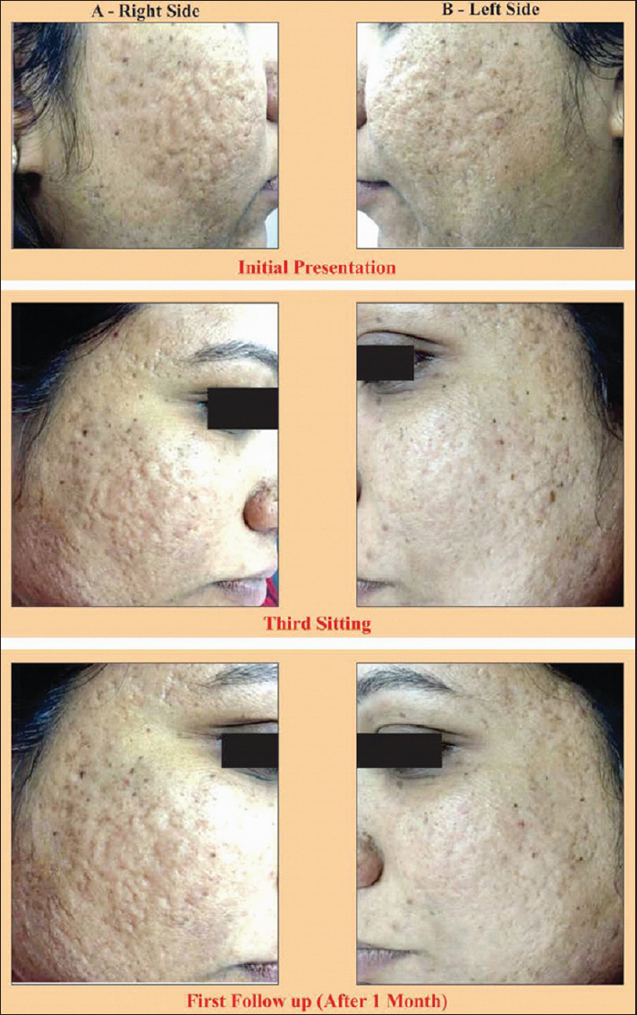 Efficacy of platelet-rich plasma in acne scars Gulanikar AD