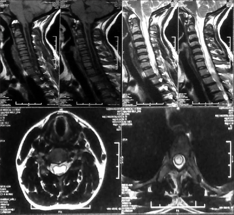 Figure 2: Sagittal and axial section of T1-weighted and T2-weighted magnetic resonance imaging cervical spine showing herniation of cerebellar tonsil with large cervico-dorsal syrinx