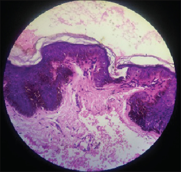 Figure 5: Histopathology findings in acanthosis nigricans showing papillomatosis, hyperkeratosis and hyperpigmentation of the basal layer, follicular plugging and finger-like projections of dermal papillae (H and E, ×40)