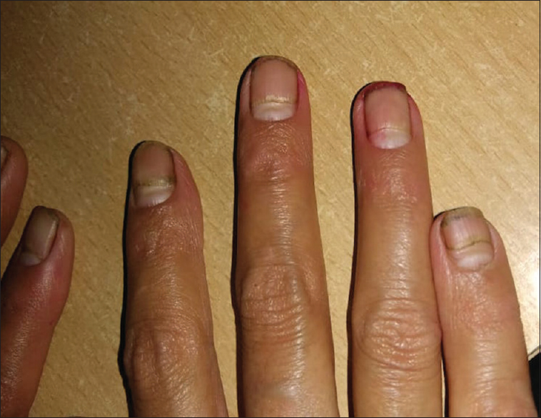 Figure 12: Beau's lines on finger nails in hemodialysis patients