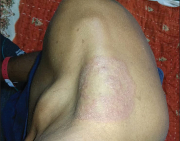 Figure 6: Dermatophytic infection (Tinea corporis) in Group A patients (those who are on dialysis)