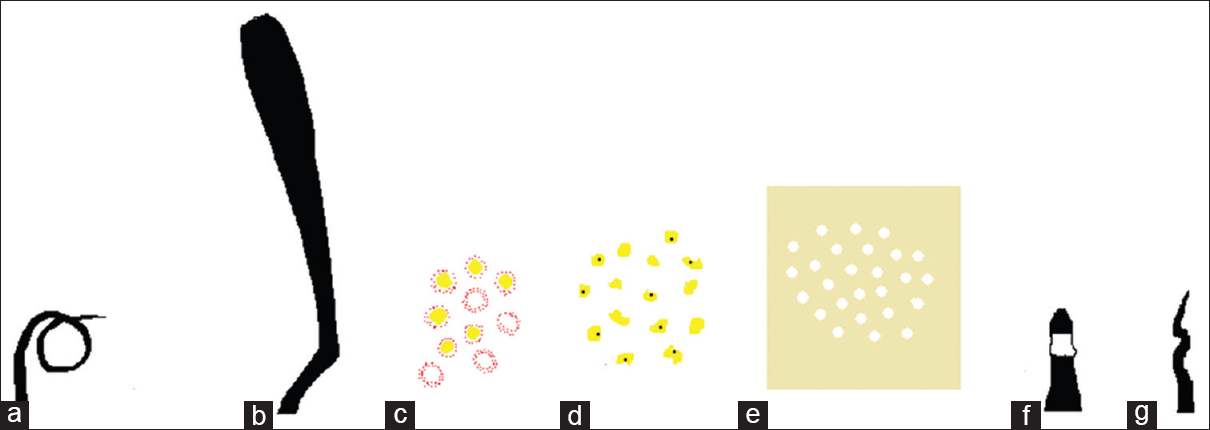 "Figure 3: Schematic diagram shows pigtail or circle hair (a), coudability hair (b), red dots around yellow and white follicular plugs (c), yellow dots (d), white dots (e), ""i"" hair (f) and flame hair (g)"