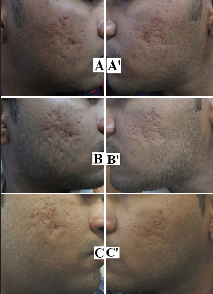 Figure 1: Subcision alone group patient showing serial improvement. Baseline (A, A'), 2 months (B, B'), 9 months (C, C')