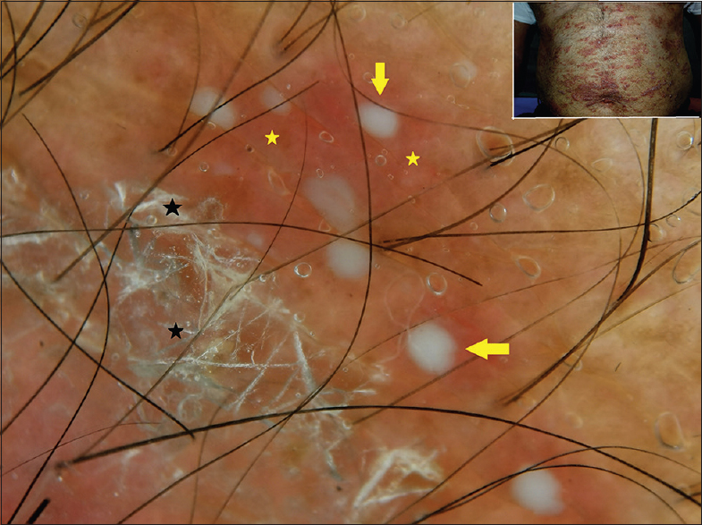 Figure 1: Dermoscopy of pustular psoriasis shows micropustules (yellow arrows), white superficial scales (black stars) on erythematous background (yellow stars). Inset: Clinical image