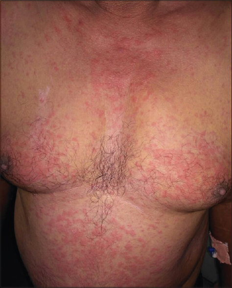 Figure 3: Maculopapular rash in patient with drug reaction with eosinophilia and systemic symptoms