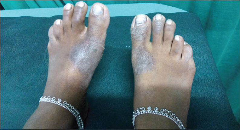 Figure 1: Footwear dermatitis involving the dorsum of foot in the area of contact with strap of footwear