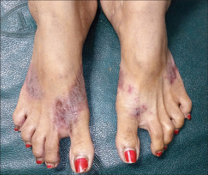 Figure 2: Footwear dermatitis involving dorsum of foot in a patient wearing v-shaped strap chappal