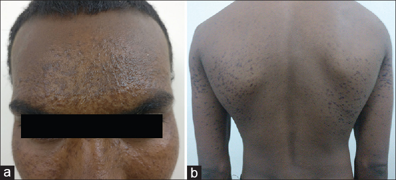 Figure 1: (a) Multiple grouped brown-to-skin-colored, nonscaly, firm, and nontender papules over forehead. (b) Multiple brownish papules over back