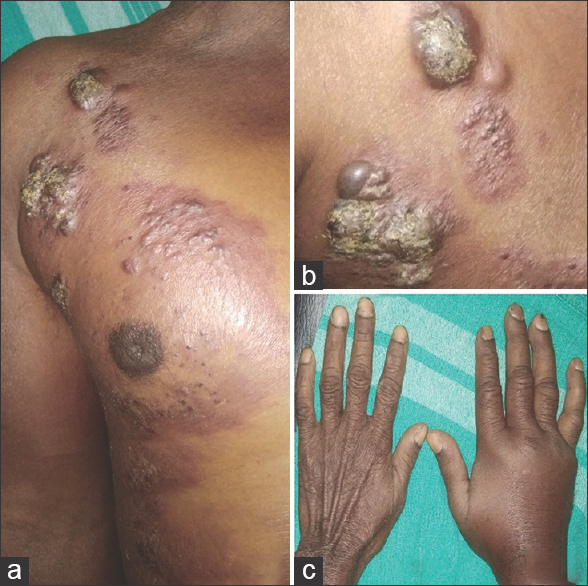 Figure 1: (a) Painless induration and erythema over the right side of the chest. (b) Ulcerated nodules and plaques. (c) Edema of the right hand