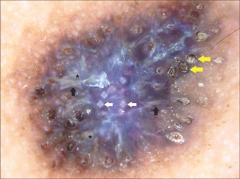 Figure 4: Noncontact dermoscopy under polarized mode from the pigmented plaque showing multiple follicular plugs (yellow arrows), white rosettes (white arrows), yellow-white linear streaks (black arrows) and globules (black stars), and shiny white lines on a dusky violaceous background (×10)