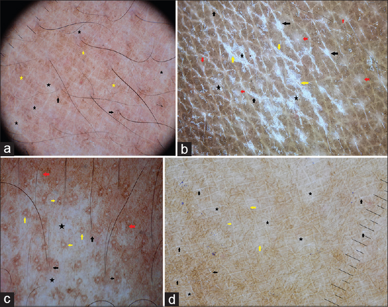 Figure 2: (a) Dermoscopy of flat hypopigmented lesion of leprosy shows focal white areas (black stars), broken hairs and pigtail hairs (black arrows) and subtle pigment network (yellow stars) within the lesion. Note the reduction in the white dots (eccrine and follicular openings) and widened skin cleavage lines. Brownish-white color is well appreciated. (b) Dermoscopy of pityriasis versicolor shows diffuse white scales (black stars) which are more prominent in skin cleavage lines (black arrows) and focal white areas (red arrows). Double edged scales (yellow arrows) are seen due stretching of lesion. Note the subtle pigment network. Brownish-white color in the background is well appreciated. (c) Dermoscopy of nevus depigmentosus shows white structureless areas (black stars) with perifollicular (black arrows) and perieccrine (yellow arrows) pigmentation within white areas which extend like pseudopods (red arrows). Note the uniform brownish pigment network and brownish-white color in the background. (d) Dermoscopy of progressive macular hypomelanosis shows focal white areas (black stars), white scales (black arrows) that are restricted to skin cleavage lines and brownish pigmentation. Note the widened skin lines (yellow arrows) and brownish-white color in the background