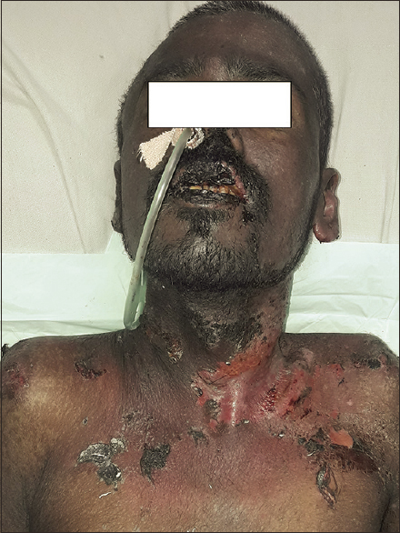Figure 2: Hemorrhagic crusting of the lips, erosions on the upper chest, and conjunctivitis